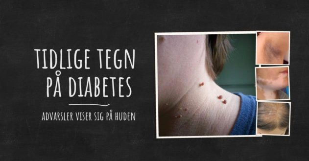 Disse hud-problemer kan være tidlige tegn på diabetes